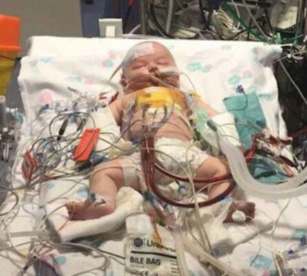 Η καρδιά ενός μωρού σταμάτησε για 15 ώρες - 9 μήνες μετά... (Video) - Περίεργα-Funny