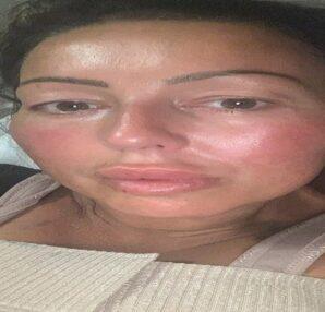 47χρονη πήγε για πλαστική στήθους - Κατά τη διάρκεια της επέμβασης... (photo) - Περίεργα-Funny