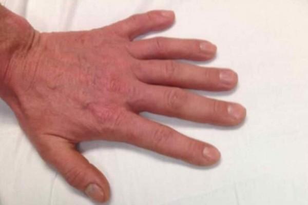 Μπορείτε να εντοπίσετε τι δεν πάει καλά με αυτό το χέρι; - Funny-Περίεργα